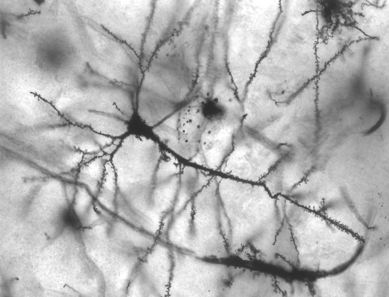 Pyramidal hippocampal neuron 40x