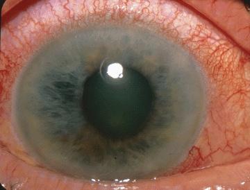 Acute_Angle_Closure-glaucoma