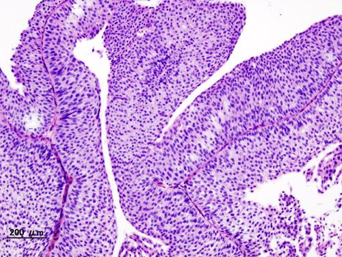 Bladder_urothelial_carcinoma