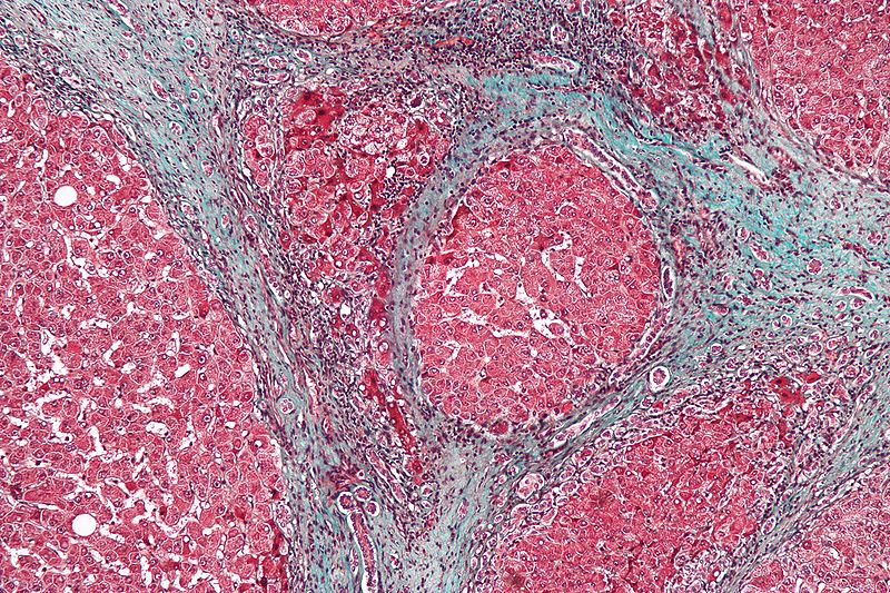 Cirrhosis high mag Aug 14