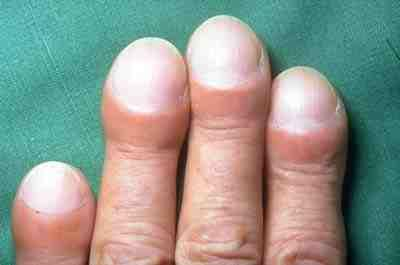 Clubbing of fingers in IPF