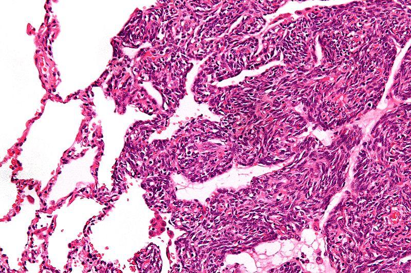 Monophasic synovial sarcoma