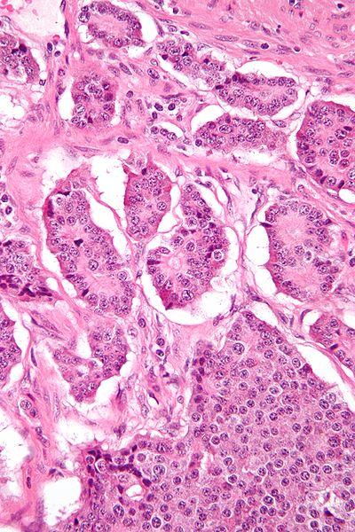 Neuroendocrine tumour