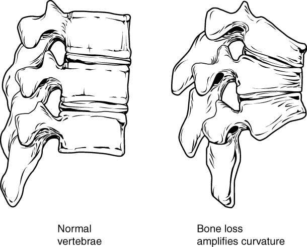 Osteoprosis of Spine