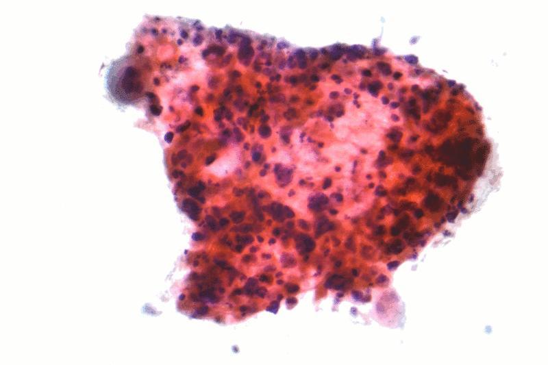 Squamous carcinoma