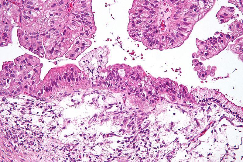 Ovarian Tunuor