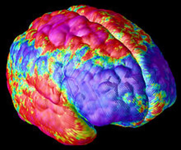 schizophrenia brain image