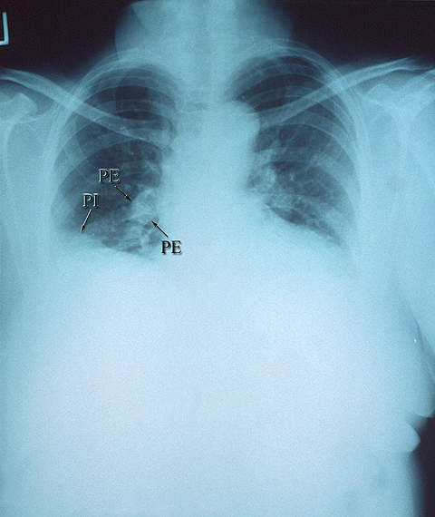 A chest X-ray showing a right pulmonary arterial embolism.