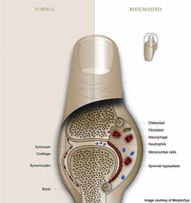 Mor103 Antibody For The Treatment Of Rheumatoid