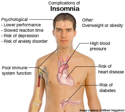 Insomnia has a number of side effects.