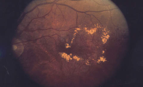 Diabetic retinopathy causes blood vessels to leak within macula.