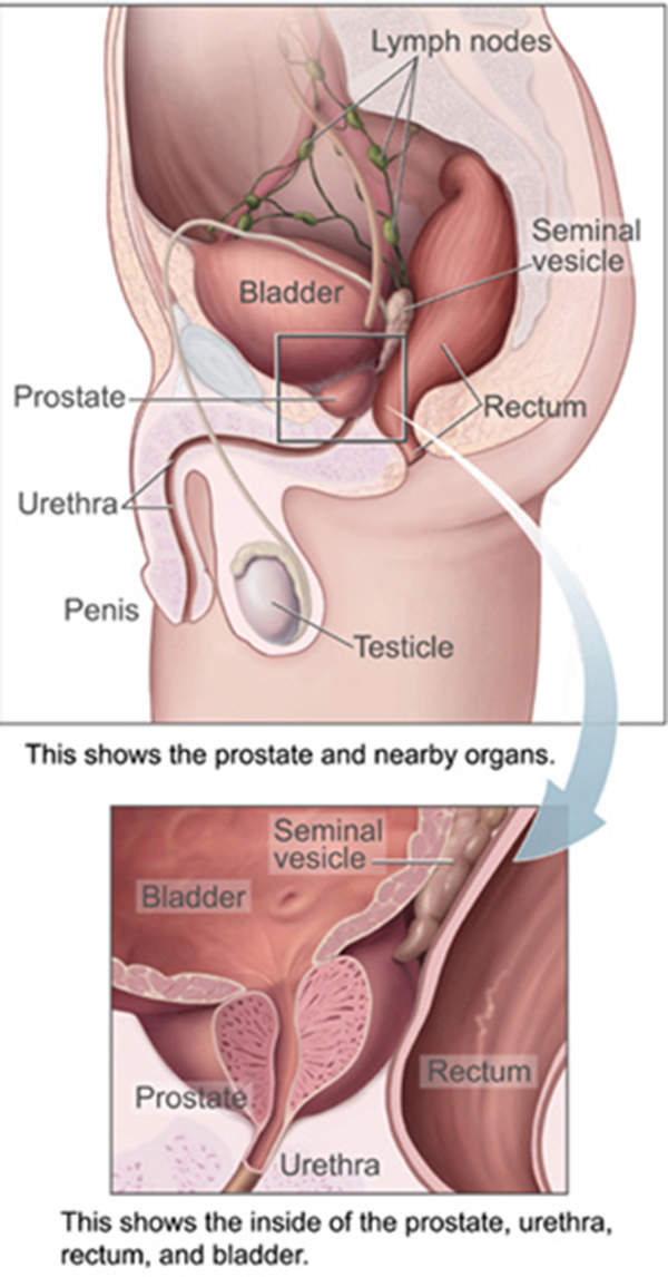 Prostate cancer emanates in the prostate gland, which is the reproductive system of a man.