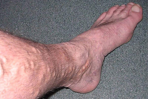 Varicose veins are caused by weakened valves and veins on legs.