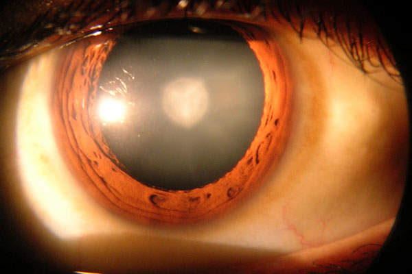 Omidria is used as irrigation solution standardly during cataract surgery or intraocular lens replacement procedure. Image: courtesy of Rakesh Ahuja, MD.