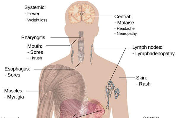 HIV attacks the immune system and makes the body prone to severe illnesses.