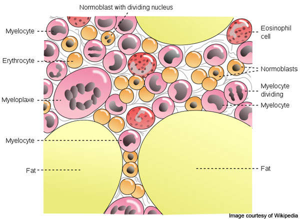 Myelofibrosis is a kind of blood cancer that affects the bone marrow.