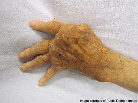 The hand of a person affected with RA.