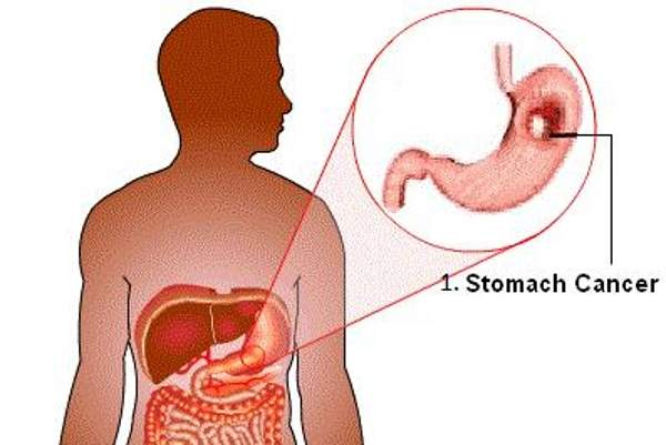 Gastric cancer originates in the form of a malignant tumour in the lining of the stomach. Image courtesy of Beet012.