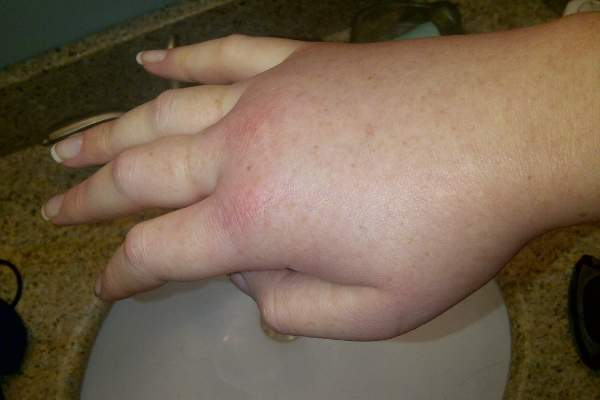 Hereditary Angioedema leads to the swelling of extreme body parts. Image: courtesy of LucyHAE.