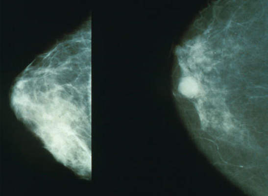 Breast cancer starts in the tissues of the breast.
