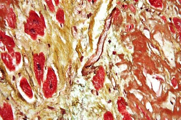 Cardiovascular diseases (CVD) are associated with the build up of plague in the blood vessels or hardening of arteries. Image: courtesy of Nephron.