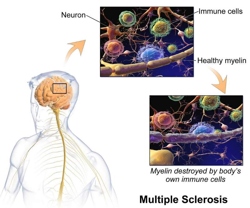 Ocrevus is indicated for the treatment of multiple sclerosis, an autoimmune disease. Image courtesy of BruceBlaus.