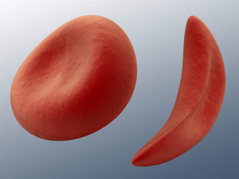 Red blood cells are shaped like a sickle in people with sickle cell disease. Image courtesy of The Los Angeles Biomedical Research Institute (LA BioMed).