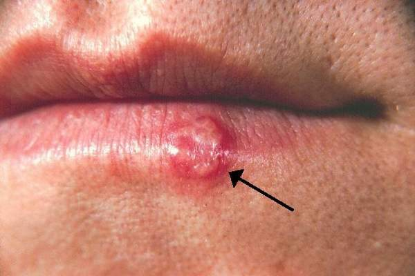 Herpes labialis causes blisters or sores around the mouth.