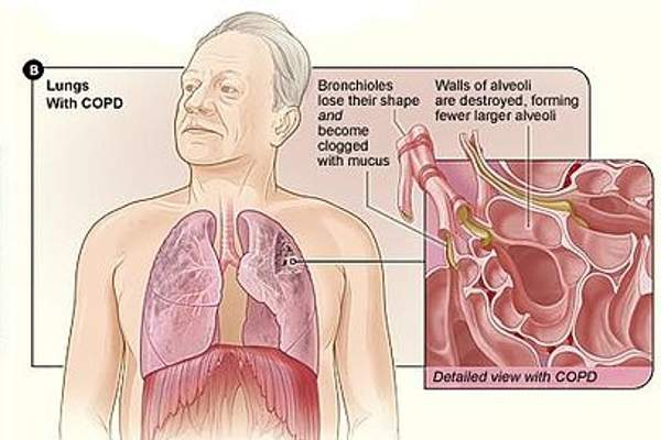 COPD is a lung disease that blocks / damages the airways inside the lungs leading to difficulty in breathing.