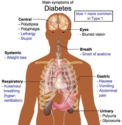 An estimated 64 million Europeans will be affected by type 2 diabetes by 2030.