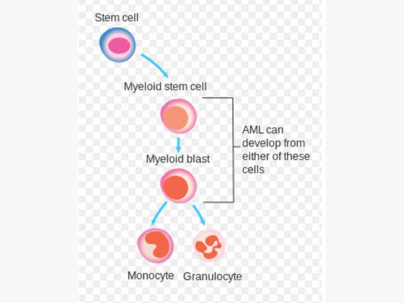 Acute myeloid leukaemia is a type of cancer of the bone marrow and the blood, where bone marrow produces abnormal myeloblasts, platelets and red blood cells. Image courtesy of Cancer Research UK.