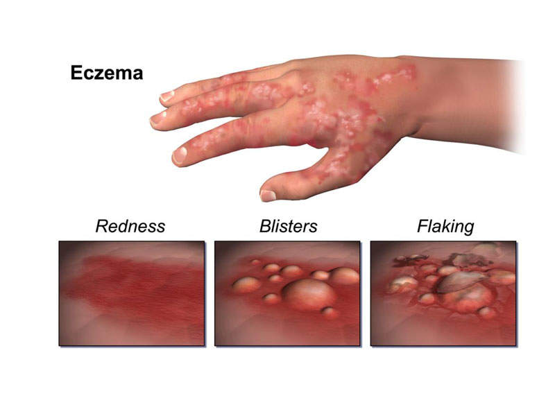 Atopic dermatitis is a severe form of eczema characterised by itchy swollen cracks and scaly patches on skin. Image courtesy of BruceBlaus.