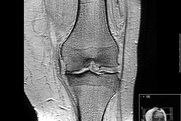 Osteoarthritis (OA) is a disease of joints of the knee. Image courtesy of Scuba-limp.