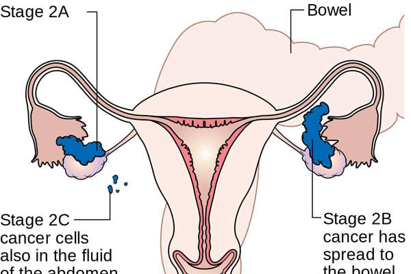 Ovarian cancer affects the ovaries in the female reproductive system. Image: courtesy of Cancer Research UK.