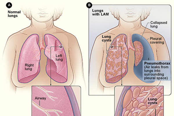 Lymphangioleiomyomatosis (LAM) is a rare, progressive lung disease characterised by an abnormal growth of smooth muscle cells in lung tissues. Image: courtesy of National Heart Lung and Blood Institute.