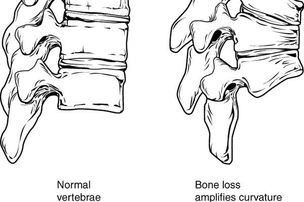 Osteoporosis causes bones to become weak and fragile. Image: courtesy of Anatomy and Physiology, Connexions.