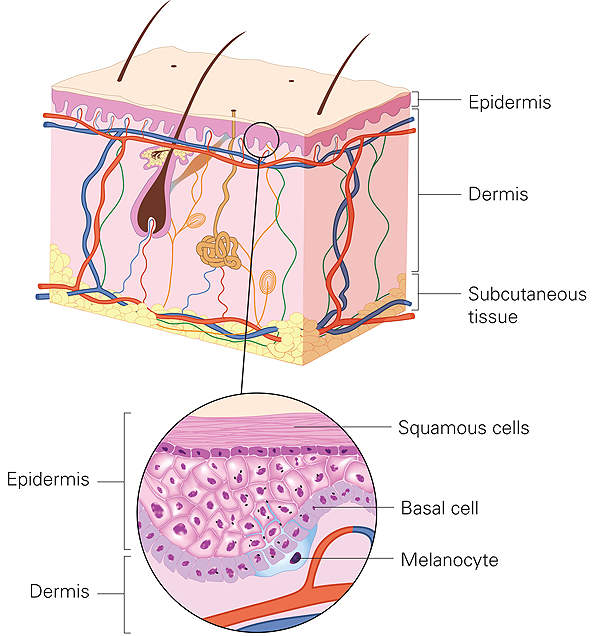 Basal cell carcinoma develops on the top layer or epidermis of the skin. Image courtesy of Roche Pharmaceuticals.
