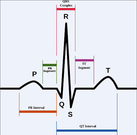 An echocardiogram. The P wave represents depolarization of the atria – it is absent in patients with atrial fibrillation.