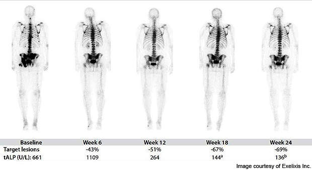 Durable effects observed on bone scans: this image details bone scan resolution and a confirmed partial response in a docetaxel-pretreated CRPC patient.