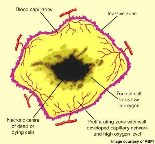 Antisoma's ASA404 is a vascular disrupting agent (VDA) that is designed to attack the established blood vessel network within a tumour.