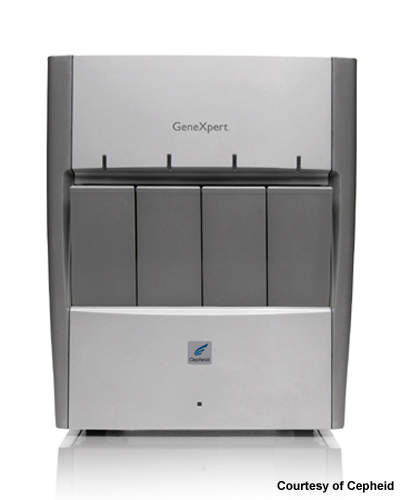 The test, which uses Cepheid's GeneXpert system, takes just 45 minutes.