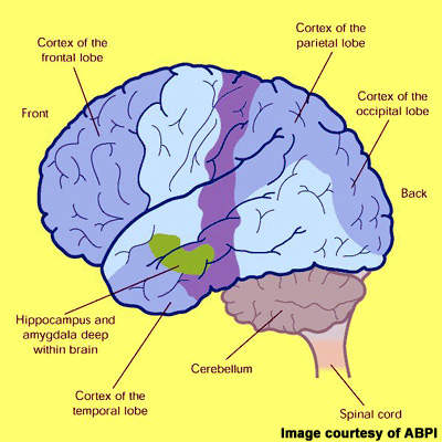 Cross-section of the human brain showing the regions affected in Alzheimer's disease (AD). Darker shaded areas, such as the cortex and hippocampus, are those most damaged in AD.
