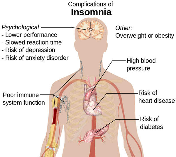 Insomnia may lead to serious psychological and physiological health problems.
