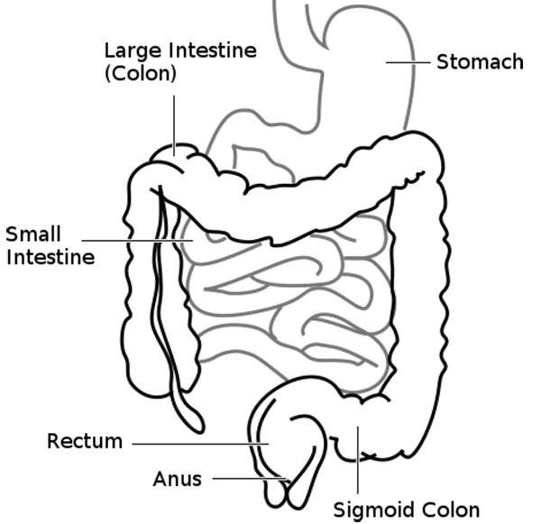 The disease originates in the colon (large intestine). Image courtesy of Connormah.
