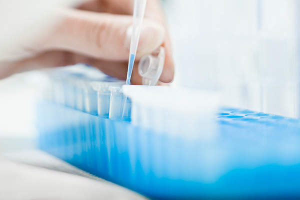 Kineret was approved by the FDA on the basis of results obtained from a Phase III open-label and uncontrolled study.