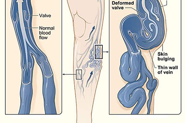 Varicose veins cause aching pain and discomfort.