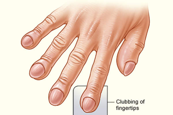 Clubbing of the fingers is one of the most prominent symptoms of idiopathic pulmonary fibrosis. Image: courtesy of National Heart Lung and Blood Institute (NIH) / Wikimedia Commons.
