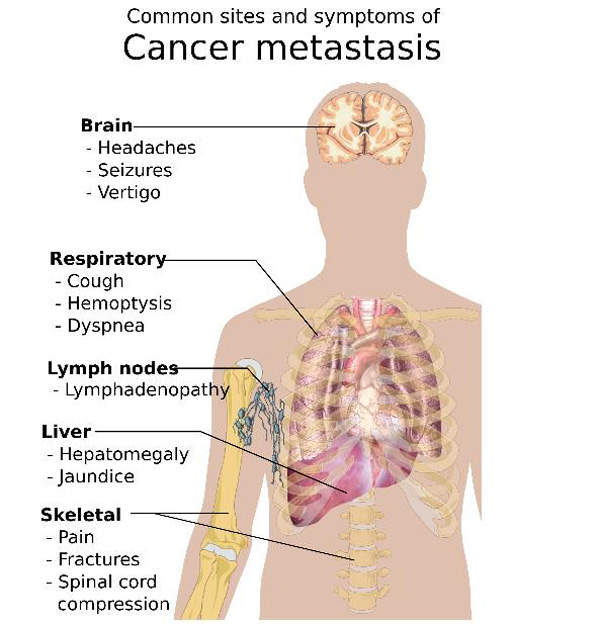 Cancer can metastasise and spread to various other parts of the body.