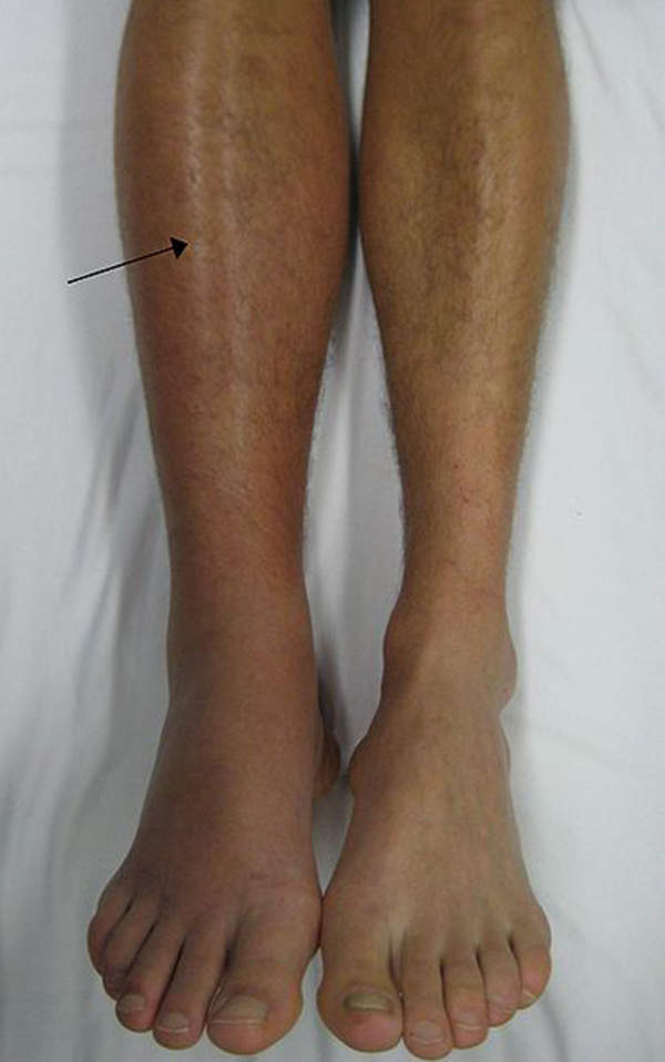 Deep vein thrombosis (DVT) is the formation of a blood clot in a vein, which generally occurs in the lower leg or thigh. Image courtesy of James Heilman, MD.