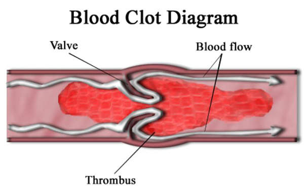 CFD is characterised by the inability of the body to form blood clots. Image courtesy of Persian Poet Gal.